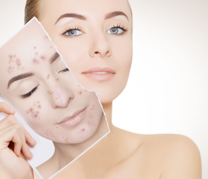 5 Ways to Improve your Skincare