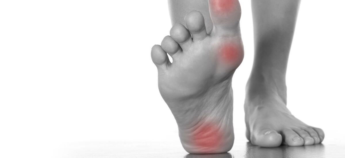 Plantar Fasciitis Treatment: 7 Ways To Get Relief From The Pain In Your Heels
